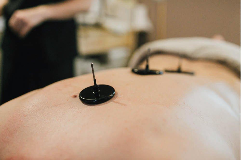 Elettrodi per stimolazione sottocutanea con Tecar Terapia